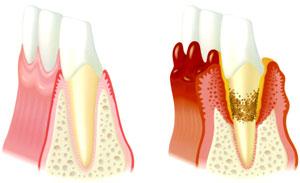健康な状態(左)と、歯周病にかかった状態(右)