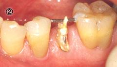 歯牙挺出 治療の流れ2