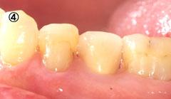 歯牙挺出 治療の流れ4