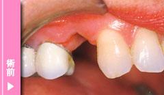 審美歯科 治療前