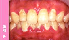 歯肉炎治療の術前