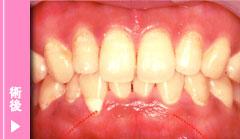 歯肉炎治療の術後