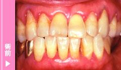 中等度歯周炎の術前