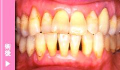 中等度歯周炎の術後