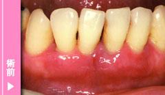 重度歯周炎の術前