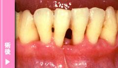 重度歯周炎の術後